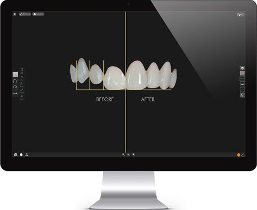 """alt=""""Smile Makeover Design Software"""""""