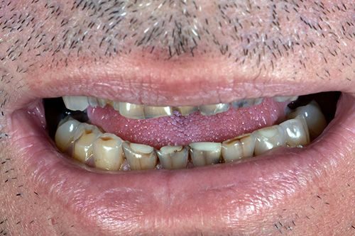 Full Mouth Restoration Before