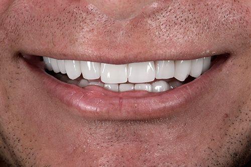 Smile Makeover After