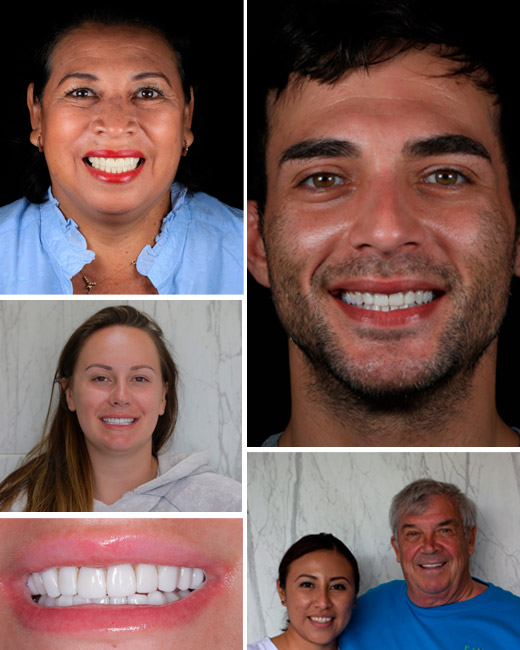 "alt=""Smile Makeover dental results patients"""