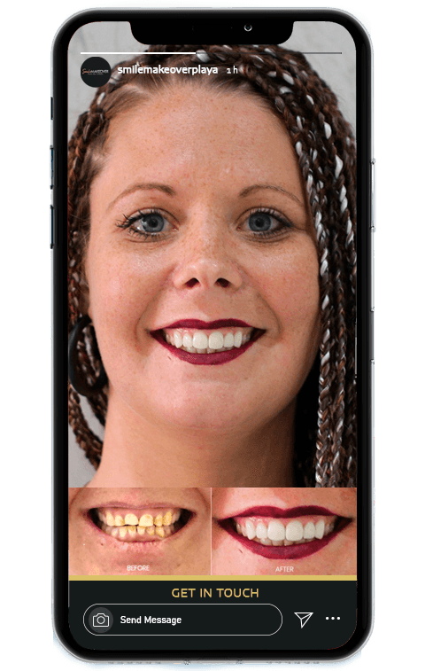 Smile Makeover Playa Treatments