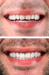 Dental treatments Costs veneers Mexico