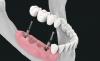 3 on 6 dental implants Mexico