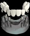 3 bridges over 6 implants