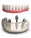 Dental implants All on 4 Mexico