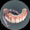 Fixed Hybrid Denture