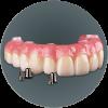 Prettau Bridge fix dentures