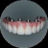 Composite Full Arch Dental Restoration